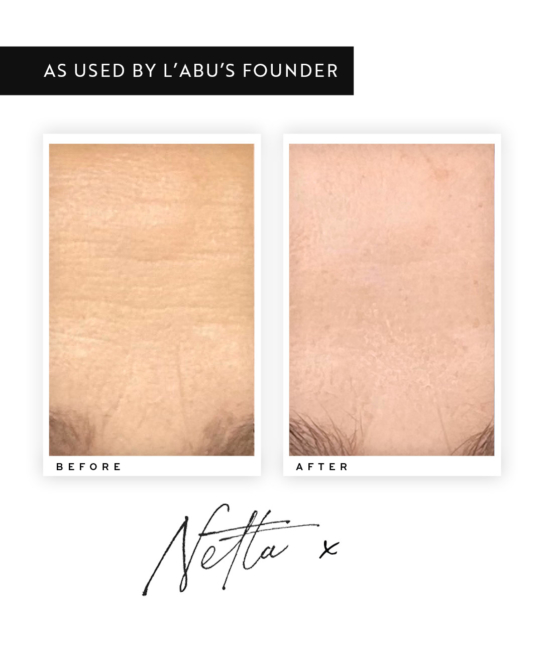 before and after use