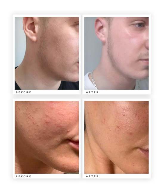 Collagen Boosting Moisturiser before and after use