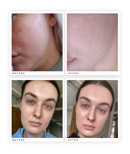 Pore Refining Scrub before and after use