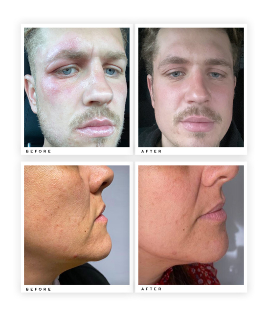 Skin Brightening Serum before and after use